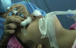 مهم ترین عوارض جراحی بینی چیست؟