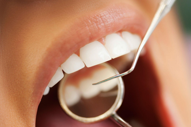 پر کردن دندان با کامپوزیت و آمالگام